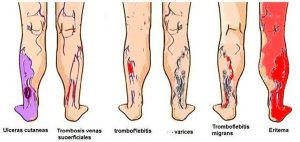Varicose veins Complications