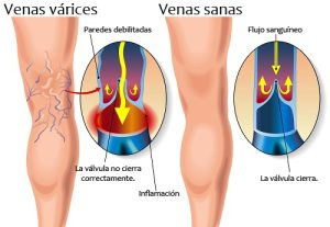 Treatment of varicose veins in Puerto Vallarta